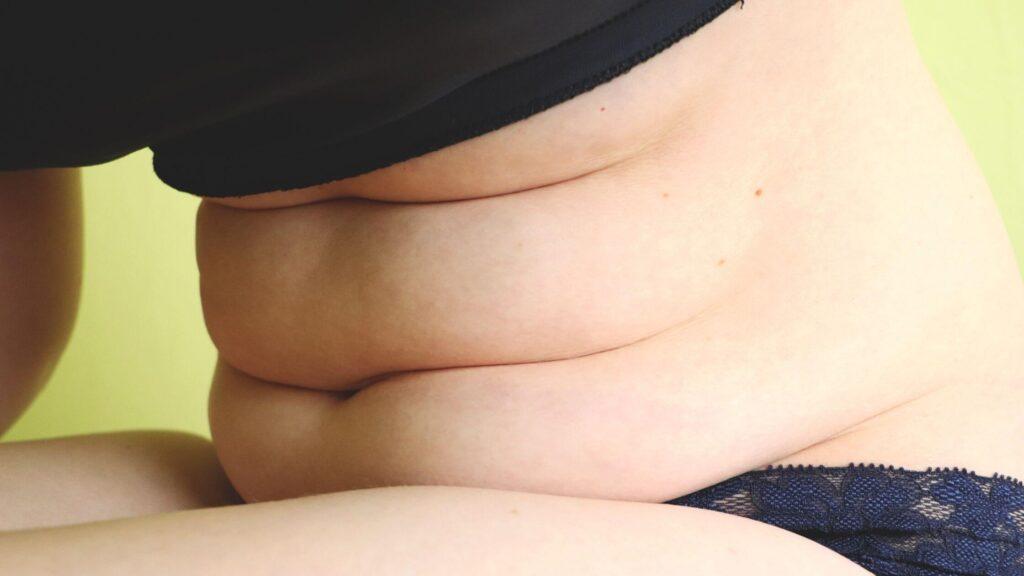 מה ההבדל בין שאיבת שומן למיחת בטן